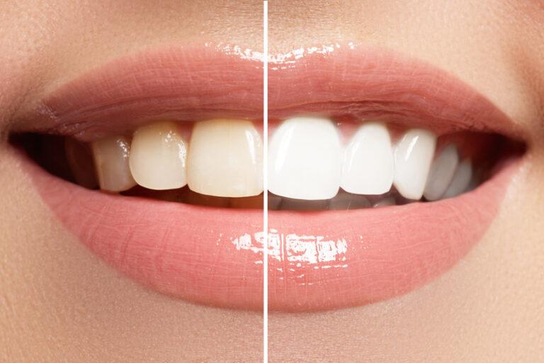 牙齒美白攻略|飲食習慣、牙齒美白療程還你自信笑容