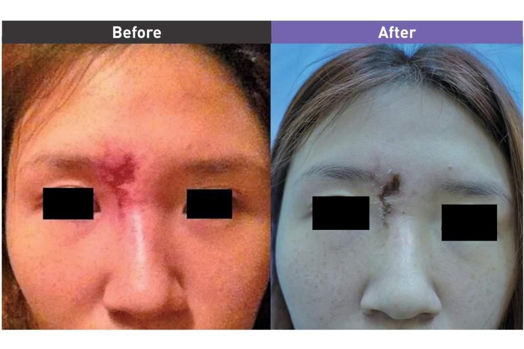 玻尿酸 注射後造成的皮膚潰爛及疤痕
